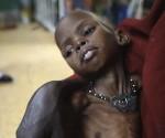Hambre-Somalia